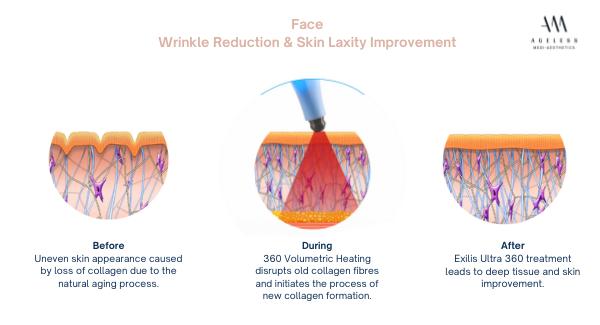 exilis skin tightening treatment, anti aging, ageless medi aesthetics, dr lam bee lan