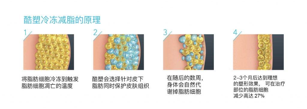 酷塑, 酷塑冷冻减脂,Cryolipolysis, CoolSculpting, dr Lam Bee Lan, CoolSculpting, fat freezing, ageless medical, ageless medi-aesthetics, fat removal, fat reduction,