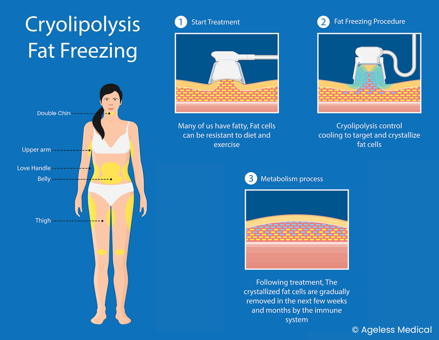 Cryolipolysis, CoolSculpting, dr Lam Bee Lan, CoolSculpting, fat freezing, ageless medical, ageless medi-aesthetics, fat removal, fat reduction, body contouring, body shaping
