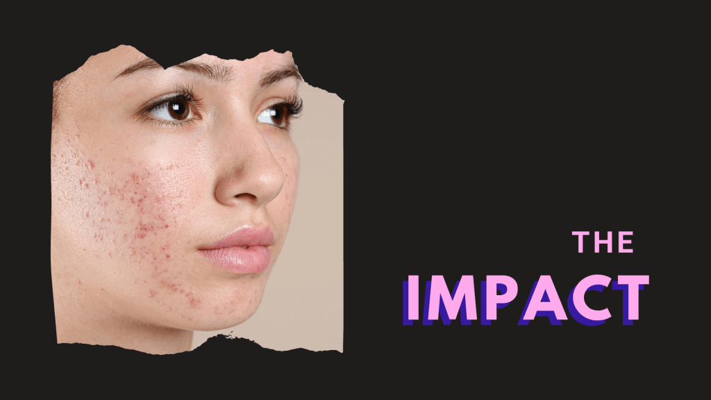Botox, fillers, lasers, profhilo, Rejuran, covid-19, acne, maskne, Ance scar, acne and scar, dr lam bee lan, Ageless Medical, acne medications, acne treatments, treatments for acne and scars